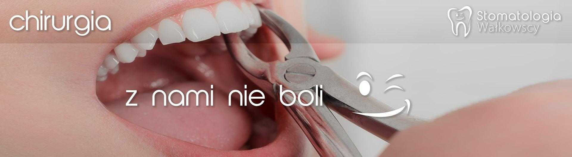 Chirurgia stomatologiczna Piła