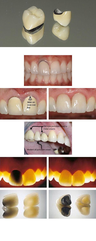 Protetyka zębów w Pile